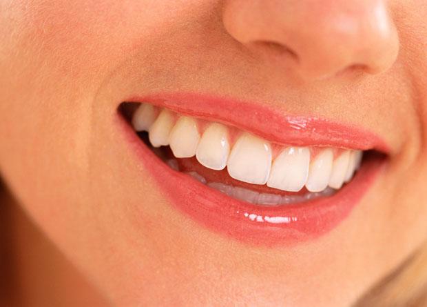 rawatan gigi, pendakap gigi